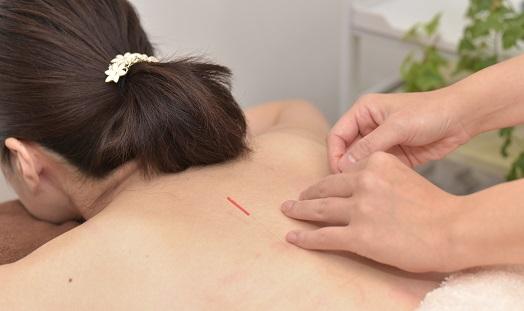 女性の背中に鍼を打っている
